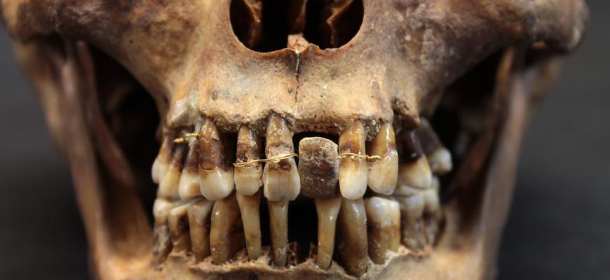Prenez soin de vous ! Archéologie du soin et de la santé Histoire